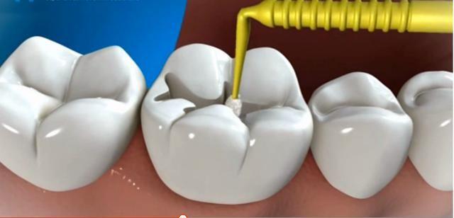 —3m树脂补牙 3m纳米树脂:美国3m纳米树脂补牙能保障填充体外形